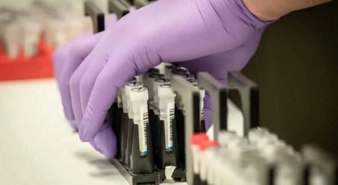 Станом на 9:00 21 квітня в Україні зафіксували  6125 випадків тисяч випадків коронавірусу